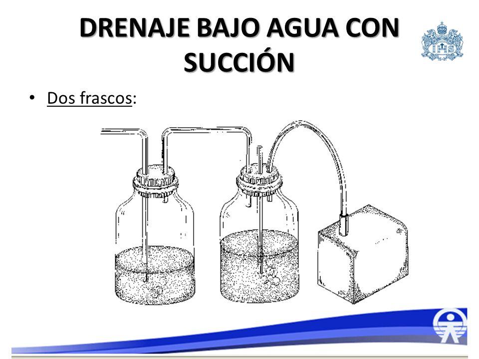 DRENAJE BAJO AGUA CON SUCCIÓN Tres frascos: – Más complejo, mayor seguridad, el de elección en quienes requieren succión.
