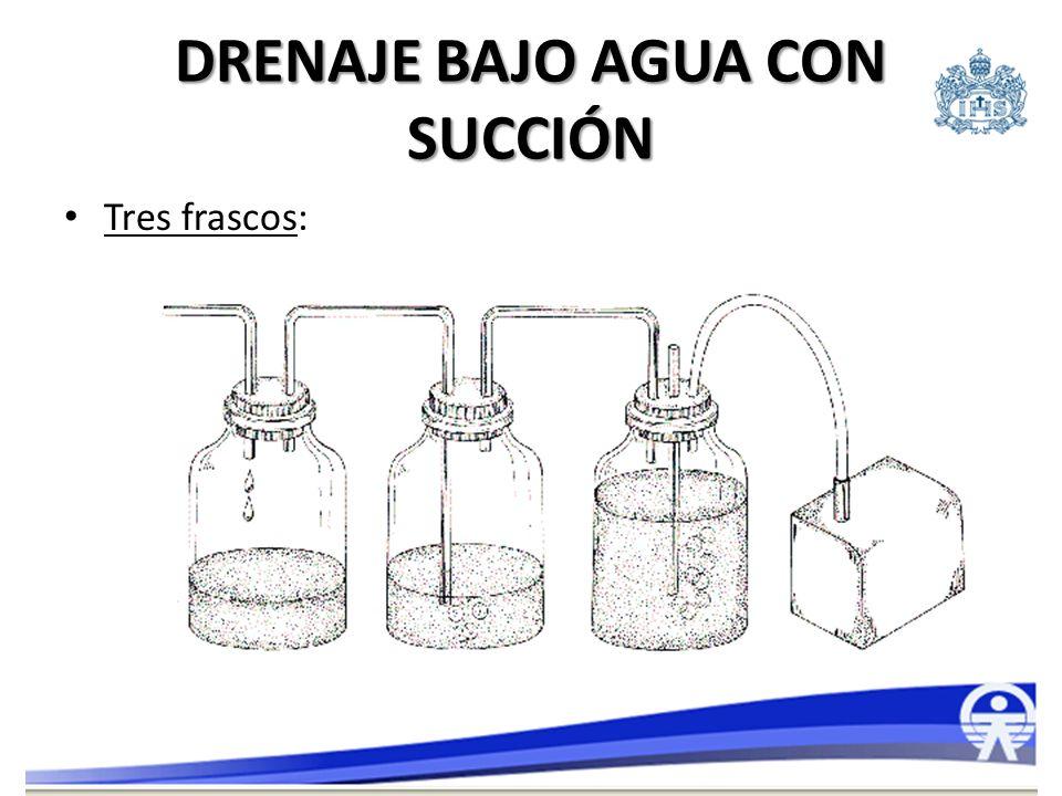 SISTEMAS CERRADOS DE DRENAJE TORÁCICO Unidades estériles plásticas (Pleur-evac, Pleura-Guard, Atrium, Thopaz).