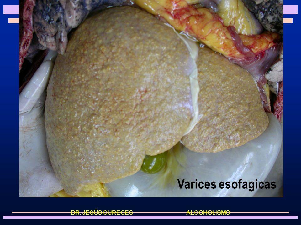 Hígado cirrótico DR. JESÚS CURECES ALCOHOLISMO