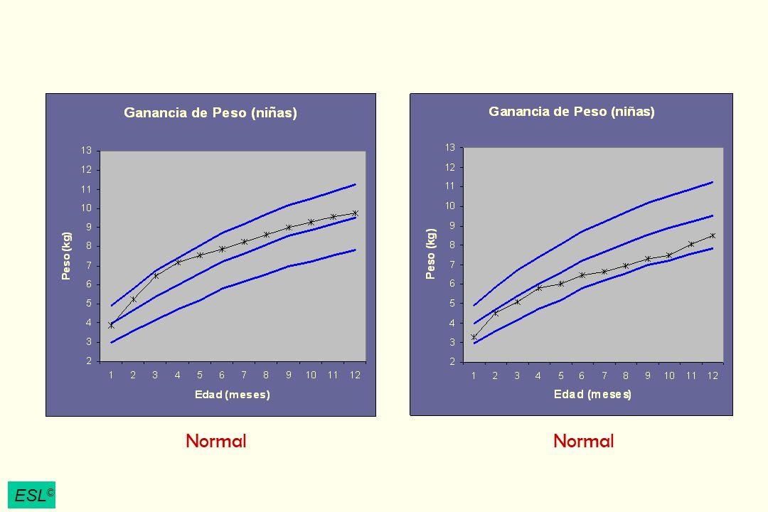 ESL © Pobre Ganancia de Peso Denota progreso físico insatisfactorio de un lactante o niño, observado en un periodo de tiempo, mediante una curva estándar de crecimiento.
