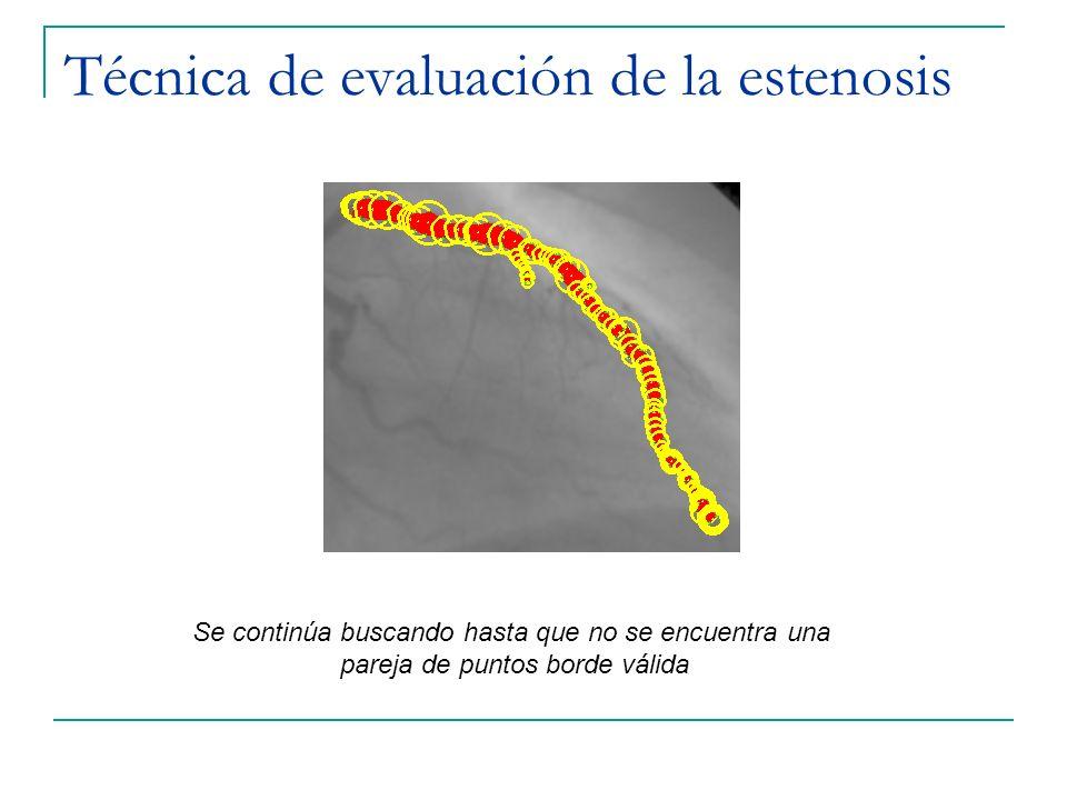 Técnica de evaluación de la estenosis Se continúa buscando hasta que no se encuentra una pareja de puntos borde válida