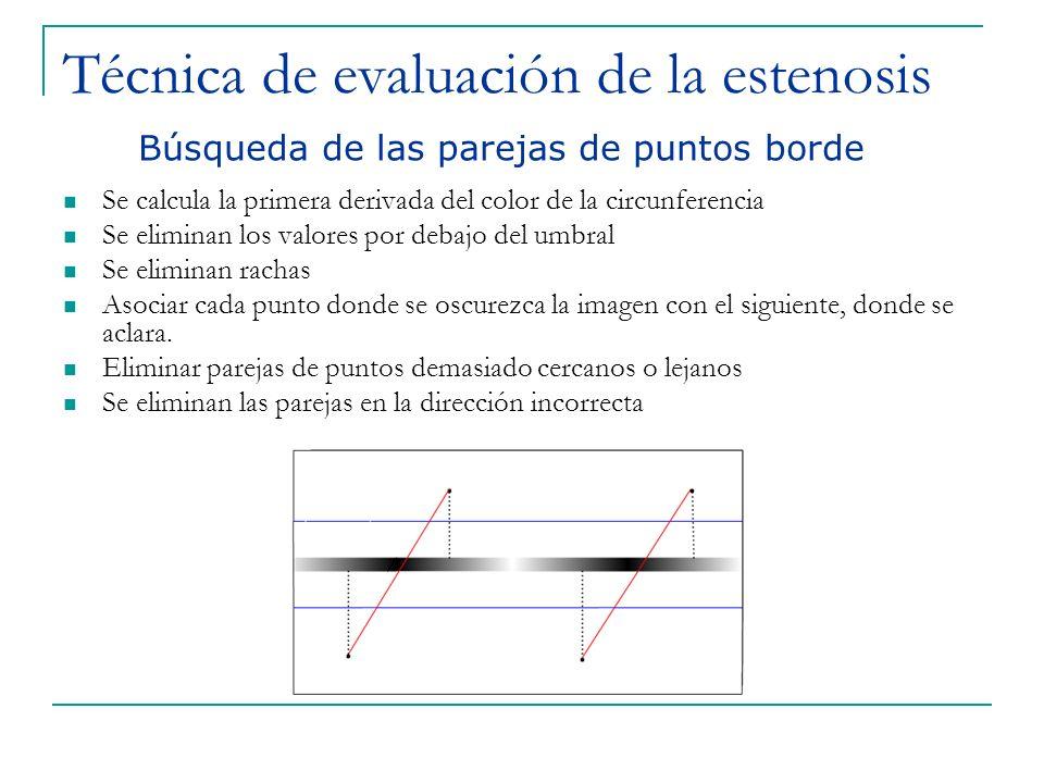 Técnica de evaluación de la estenosis Se calcula la primera derivada del color de la circunferencia Se eliminan los valores por debajo del umbral Se e