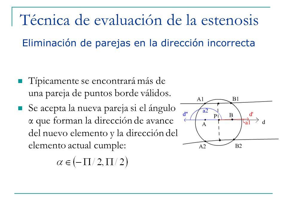Técnica de evaluación de la estenosis Típicamente se encontrará más de una pareja de puntos borde válidos. Se acepta la nueva pareja si el ángulo α qu