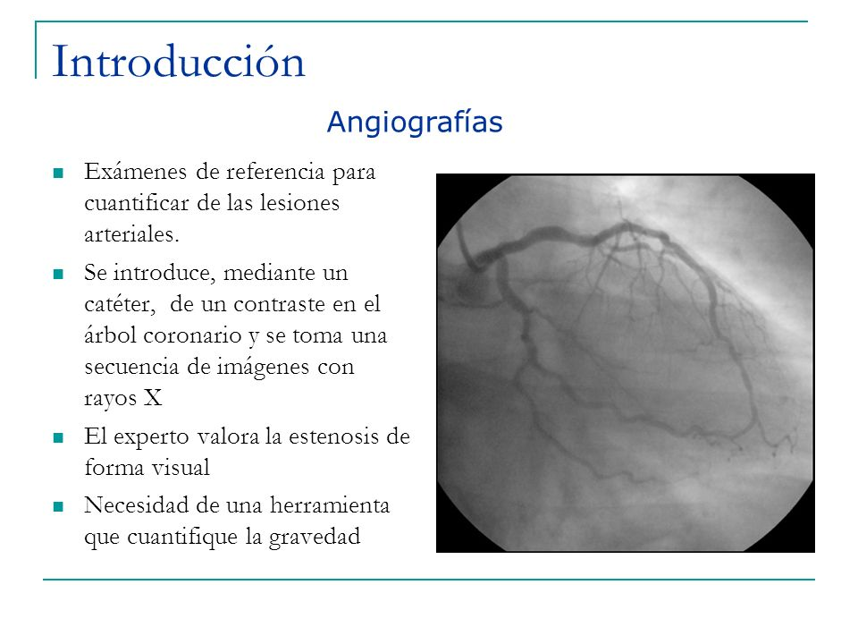 Introducción Exámenes de referencia para cuantificar de las lesiones arteriales. Se introduce, mediante un catéter, de un contraste en el árbol corona