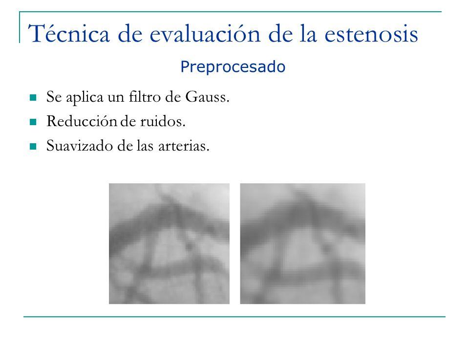 Técnica de evaluación de la estenosis Se aplica un filtro de Gauss. Reducción de ruidos. Suavizado de las arterias. Preprocesado