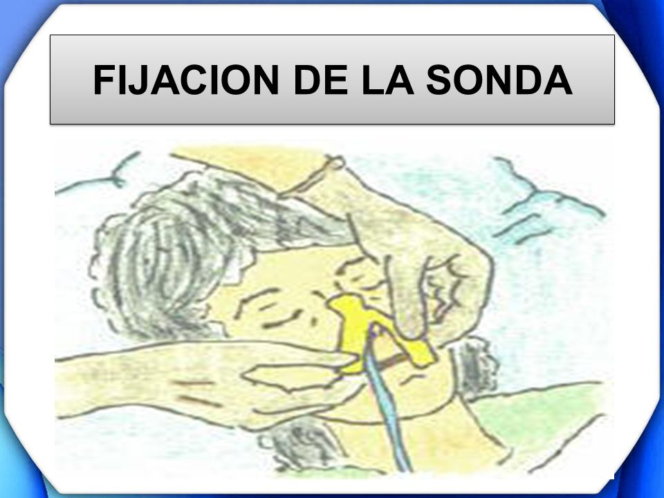 FIJACION DE LA SONDA