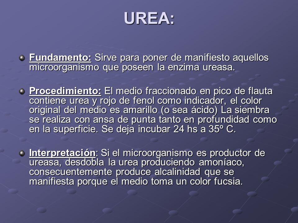 UREA: Fundamento:Sirve para poner de manifiesto aquellos microorganismo que poseen la enzima ureasa. Fundamento: Sirve para poner de manifiesto aquell