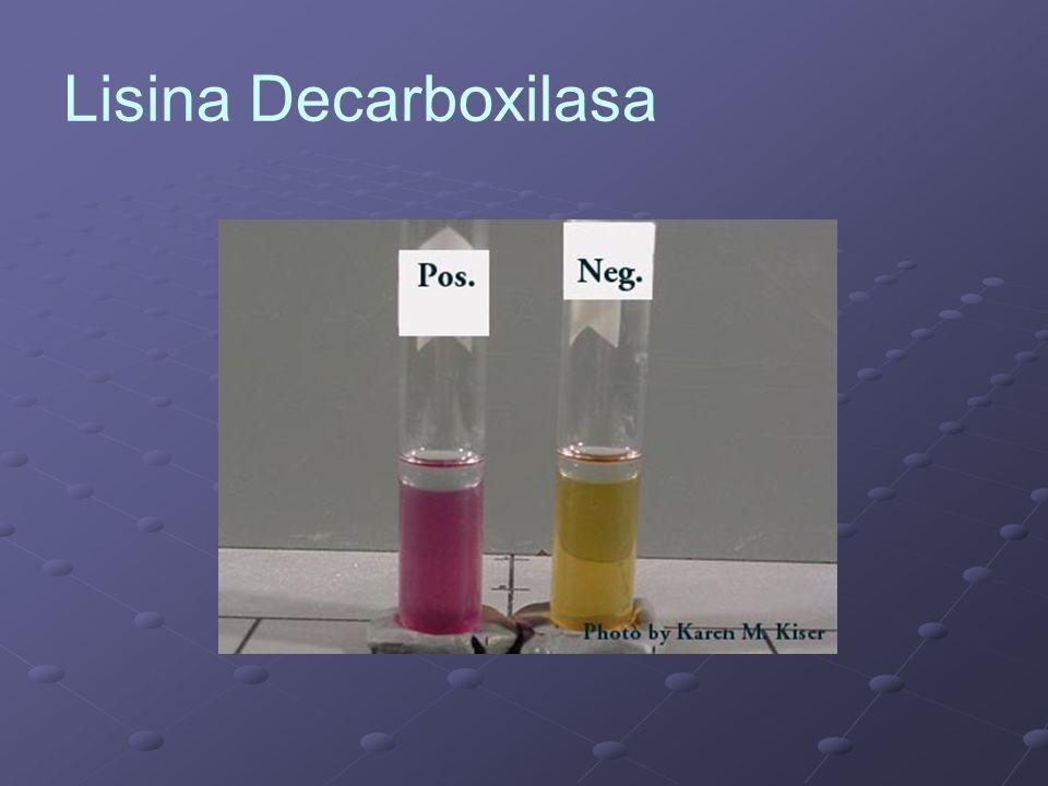 Lisina Decarboxilasa