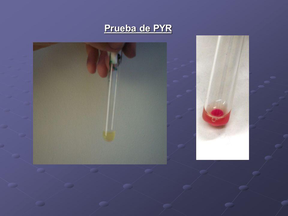Prueba del PYR: Fundamento:detecta la enzima pirrolidonil arilamidasa se utiliza como sustrato el reactivo L-pirrolidonil- beta-naftilamida (PYR), para la identificación rápida de enterococos.