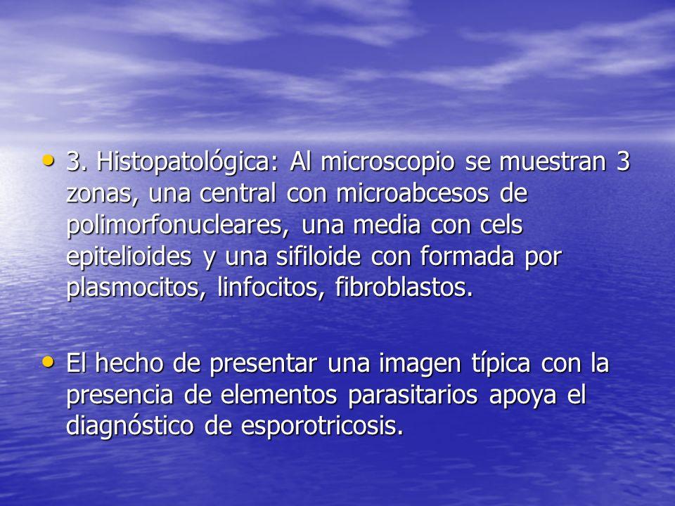 3. Histopatológica: Al microscopio se muestran 3 zonas, una central con microabcesos de polimorfonucleares, una media con cels epitelioides y una sifi