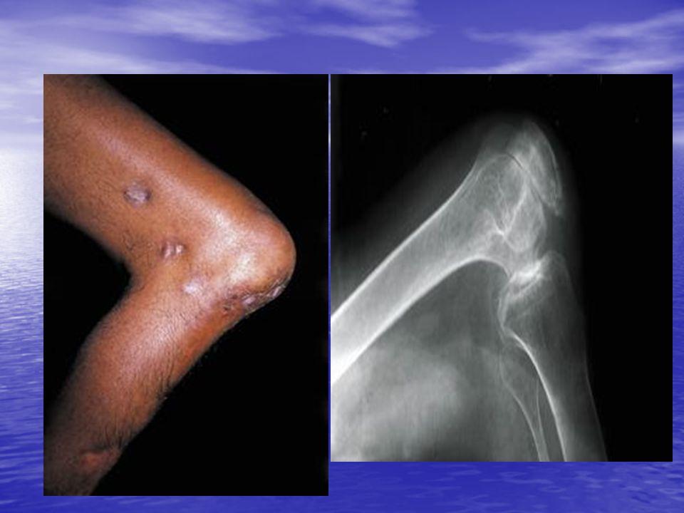 Etiopatogenia: Penetra a través de la piel por pequeños traumatismos causados por espinas, astillas o picaduras.