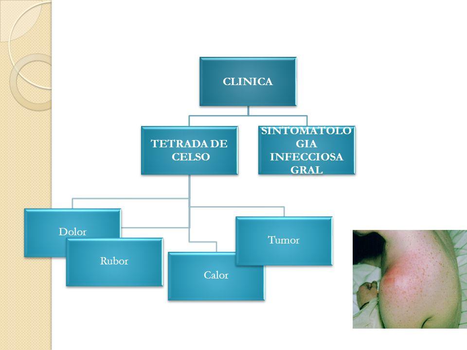 CLINICA TETRADA DE CELSO Dolor Rubor Calor Tumor SINTOMATOLO GIA INFECCIOSA GRAL
