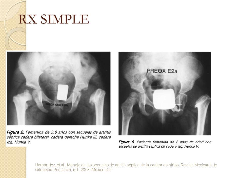 RX SIMPLE Hernández, et al., Manejo de las secuelas de artritis séptica de la cadera en niños, Revista Mexicana de Ortopedia Pediátrica, 5;1, 2003, Mé