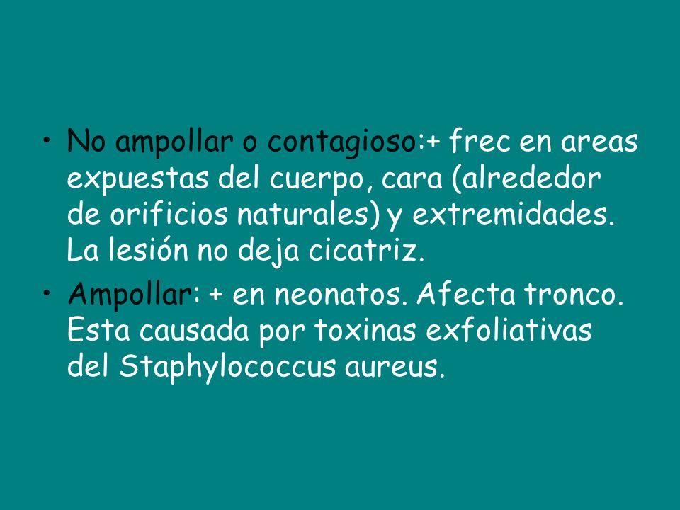 No ampollar o contagioso:+ frec en areas expuestas del cuerpo, cara (alrededor de orificios naturales) y extremidades. La lesión no deja cicatriz. Amp