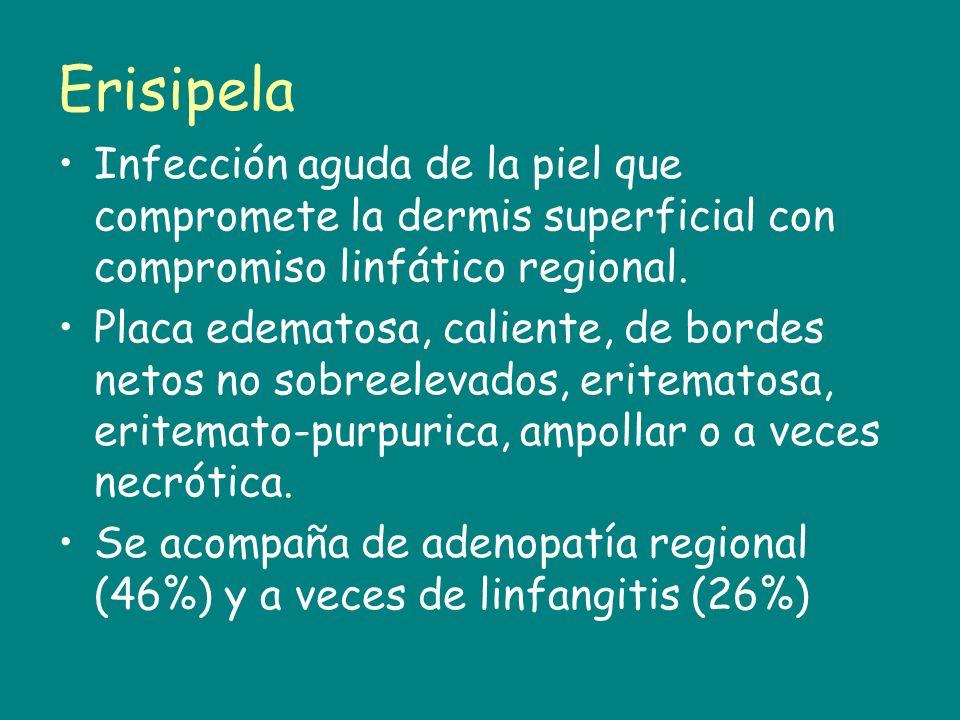 Erisipela Infección aguda de la piel que compromete la dermis superficial con compromiso linfático regional. Placa edematosa, caliente, de bordes neto