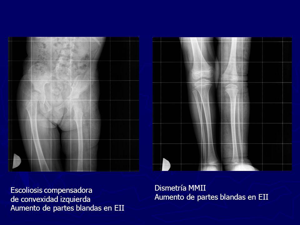 Escoliosis compensadora de convexidad izquierda Aumento de partes blandas en EII Dismetría MMII Aumento de partes blandas en EII