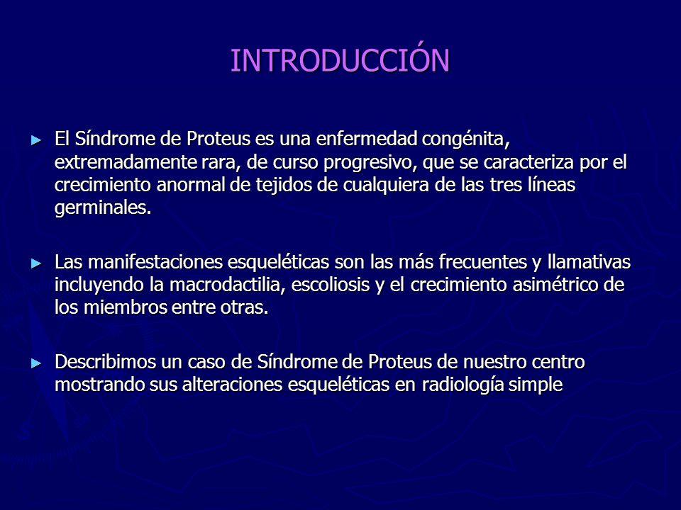 INTRODUCCIÓN El Síndrome de Proteus es una enfermedad congénita, extremadamente rara, de curso progresivo, que se caracteriza por el crecimiento anorm
