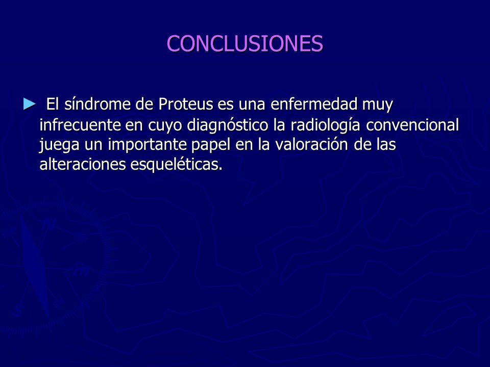 CONCLUSIONES El síndrome de Proteus es una enfermedad muy infrecuente en cuyo diagnóstico la radiología convencional juega un importante papel en la v
