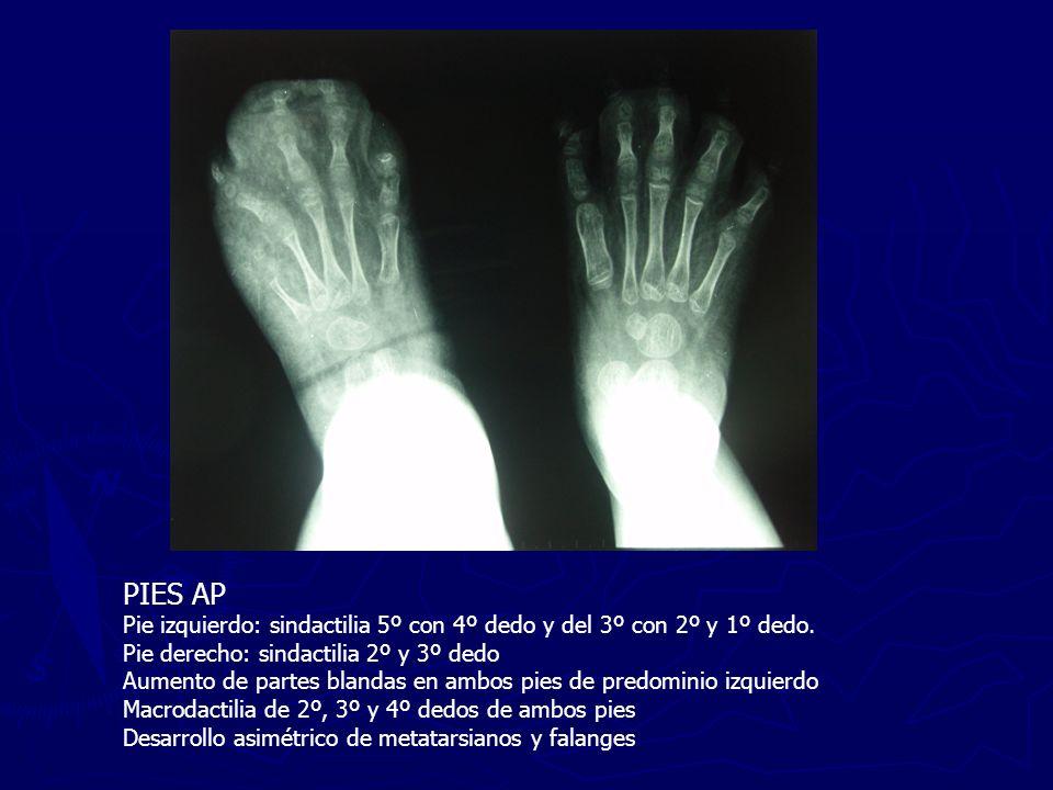 DISCUSIÓN Diagnóstico Dada la gran variabilidad de manifestaciones clínicas que presenta el S.