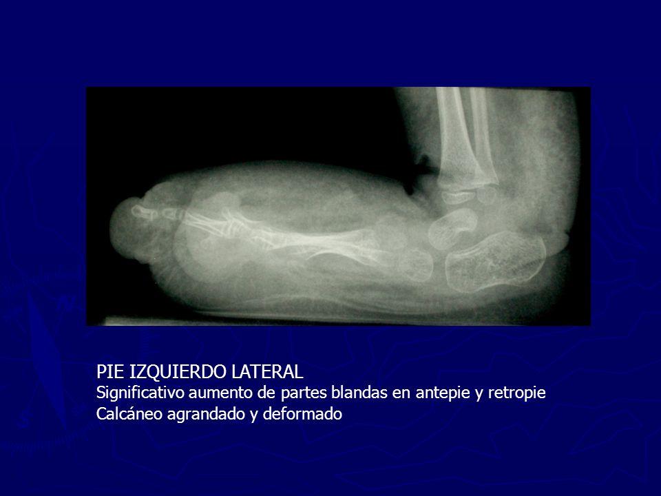 DISCUSIÓN Diagnóstico diferencial S.PROTEUS S.