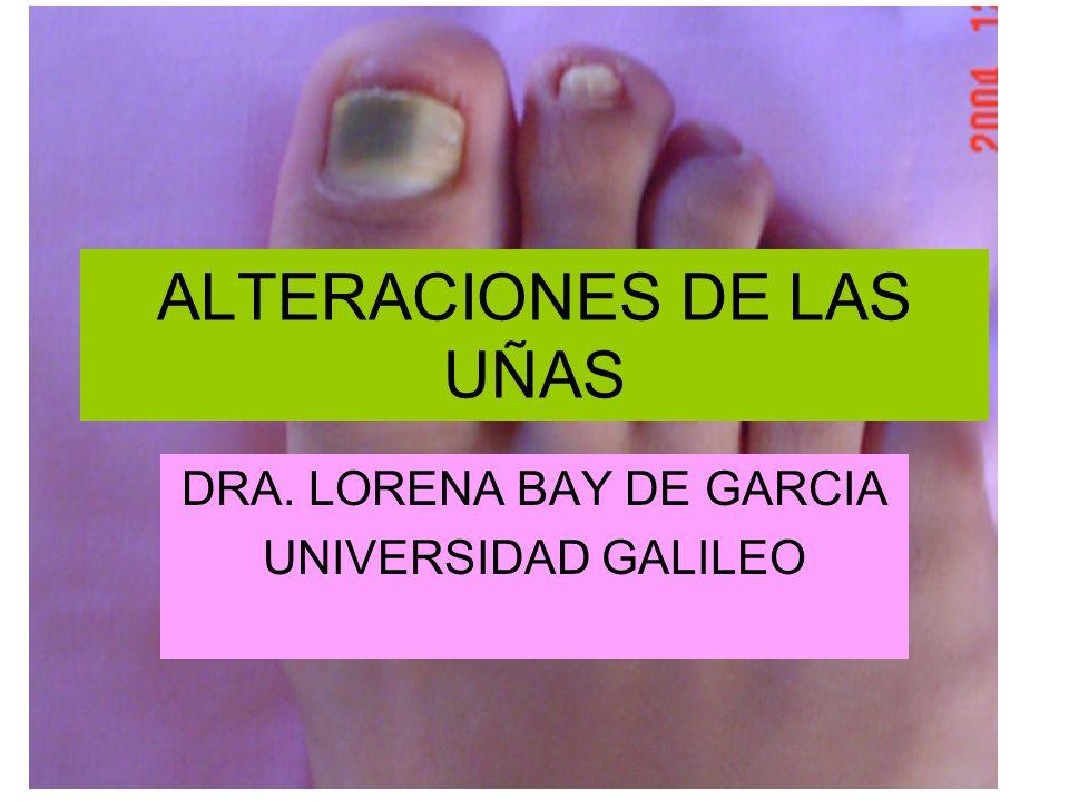 ALTERACIONES DE LAS UÑAS DRA. LORENA BAY DE GARCIA UNIVERSIDAD GALILEO
