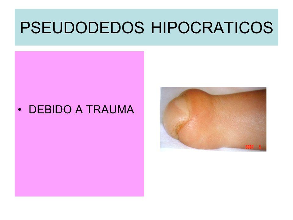 PSEUDODEDOS HIPOCRATICOS DEBIDO A TRAUMA