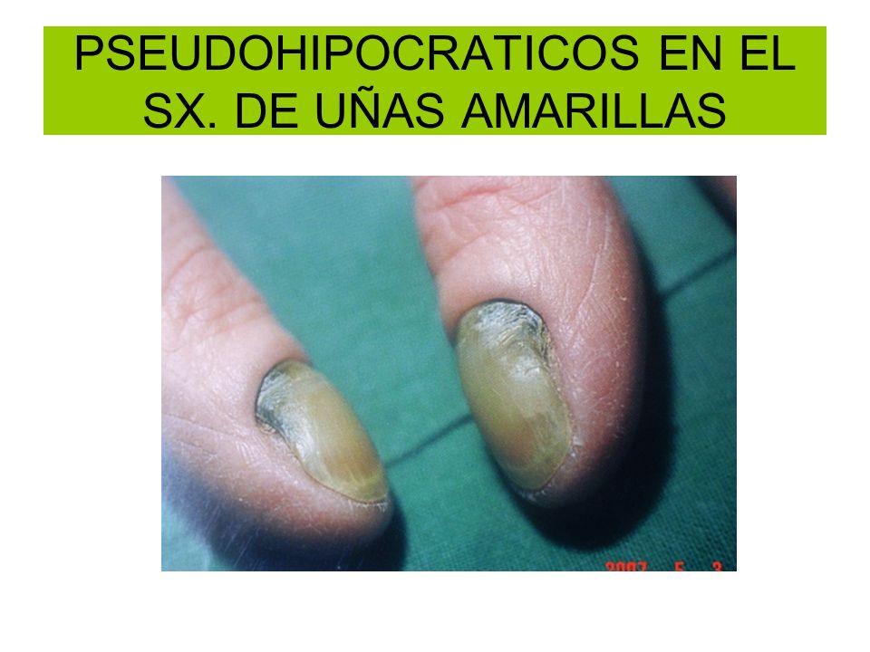 PSEUDOHIPOCRATICOS EN EL SX. DE UÑAS AMARILLAS