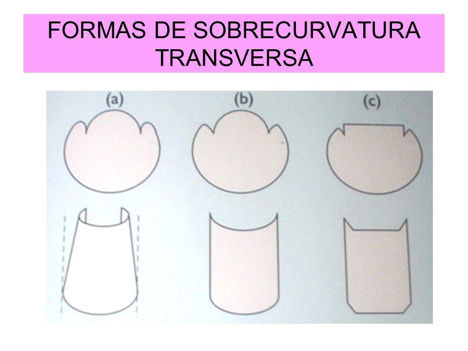 FORMAS DE SOBRECURVATURA TRANSVERSA
