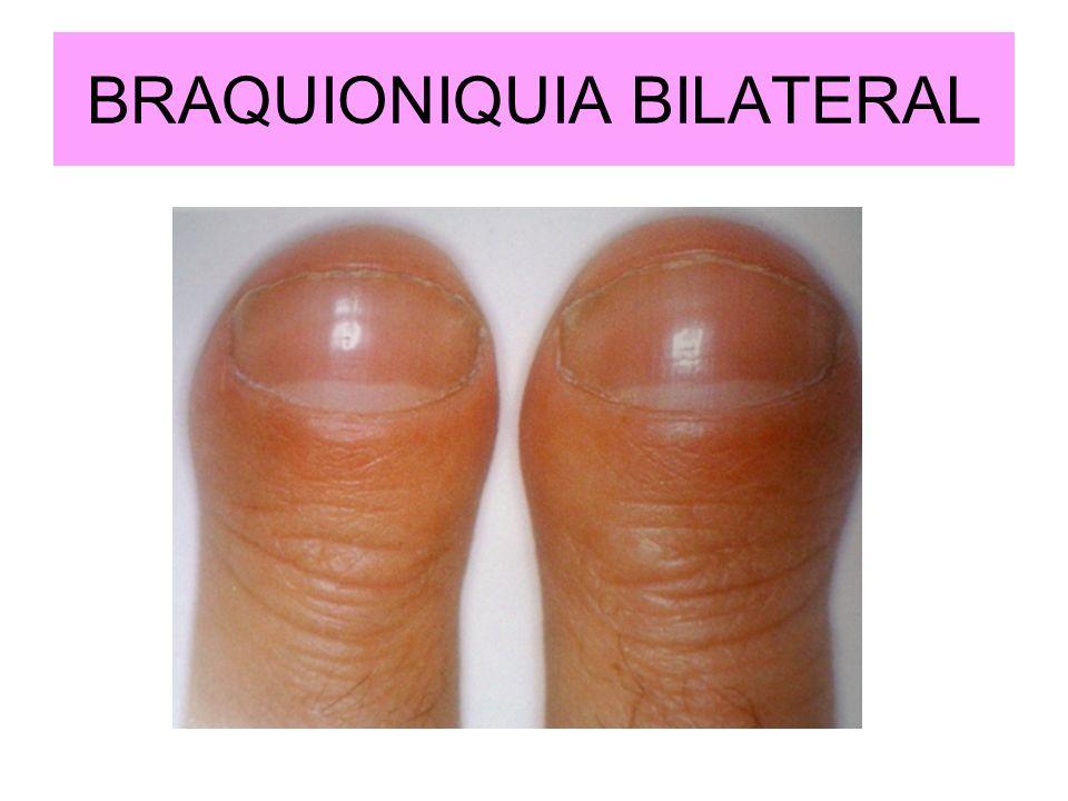 BRAQUIONIQUIA BILATERAL
