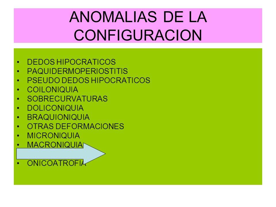 ANOMALIAS DE LA CONFIGURACION DEDOS HIPOCRATICOS PAQUIDERMOPERIOSTITIS PSEUDO DEDOS HIPOCRATICOS COILONIQUIA SOBRECURVATURAS DOLICONIQUIA BRAQUIONIQUI