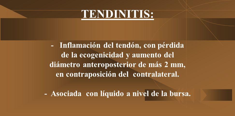 - Se clasifica en tres estadíos o etapas según NEER: 1. Edema y hemorragia petequial, tanto en el tendón como en la bursa. 2. Desarrollo de tendinitis