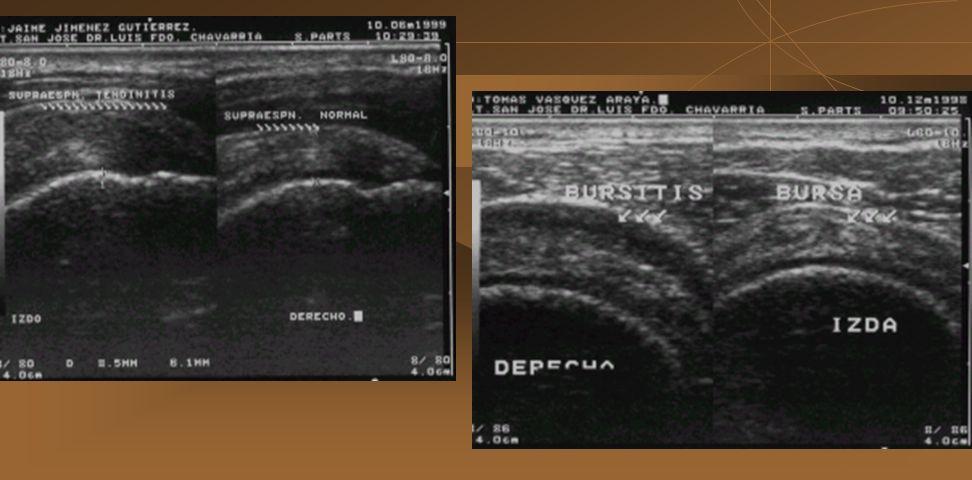 TENDINITIS: - Inflamación del tendón, con pérdida de la ecogenicidad y aumento del diámetro anteroposterior de más 2 mm, en contraposición del contral