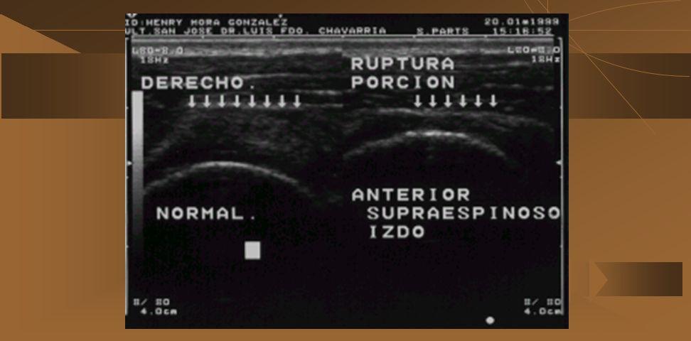 a. Ausencia completa del supraespinoso b. Hendidura o defecto anecoico o hipoecoico en el tendón c. Presencia de líquido en forma importante, a nivel