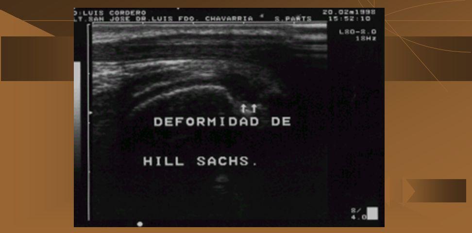 a) Tendinitis del biceps b) Ruptura del tendón del biceps c) Luxación del tendón del biceps g) Deformidad de Hill-sack (21% de las luxaciones y 74% en