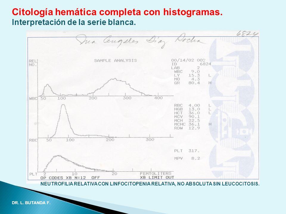 Citología hemática completa con histogramas. Interpretación de la serie blanca. NEUTROFILIA RELATIVA CON LINFOCITOPENIA RELATIVA, NO ABSOLUTA SIN LEUC