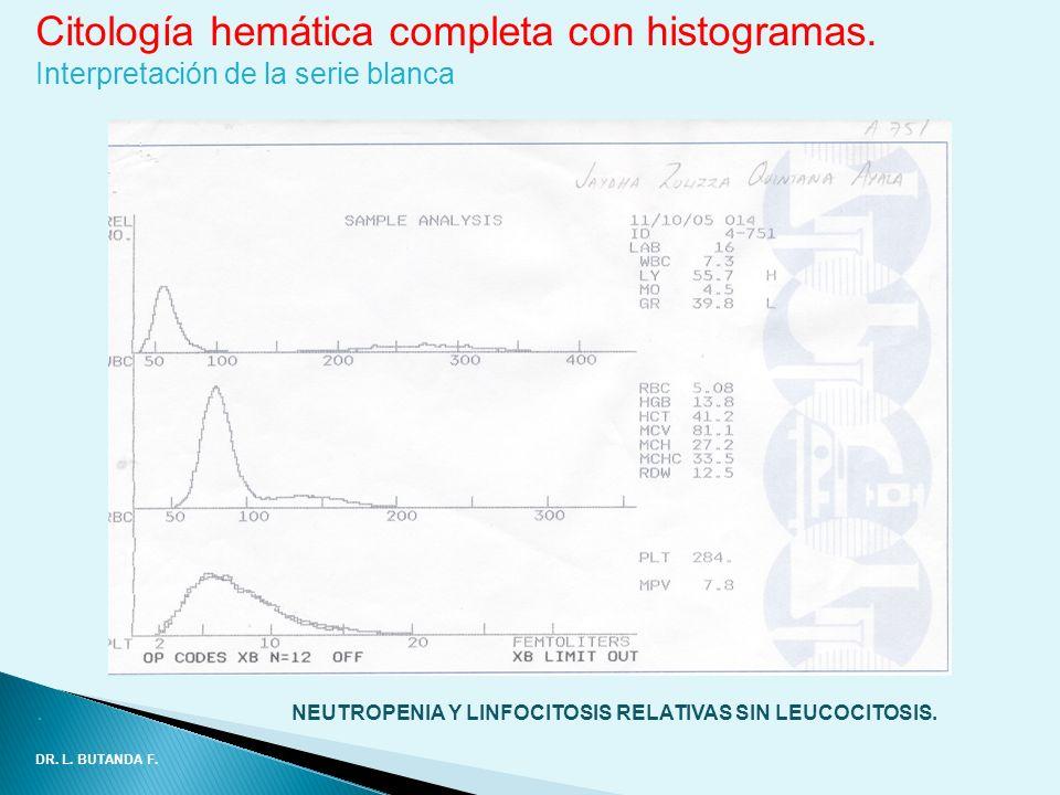 Citología hemática completa con histogramas. Interpretación de la serie blanca. NEUTROPENIA Y LINFOCITOSIS RELATIVAS SIN LEUCOCITOSIS. DR. L. BUTANDA