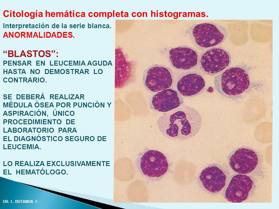 Citología hemática completa con histogramas. Interpretación de la serie blanca. ANORMALIDADES. BLASTOS: PENSAR EN LEUCEMIA AGUDA HASTA NO DEMOSTRAR LO