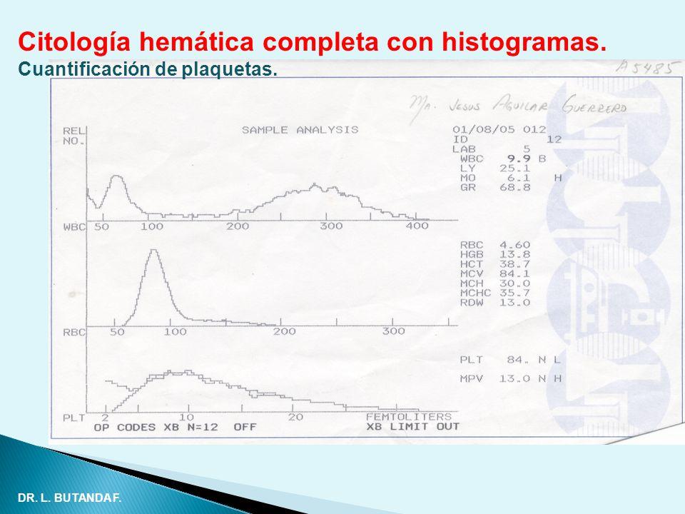 Citología hemática completa con histogramas. Cuantificación de plaquetas. DR. L. BUTANDA F.