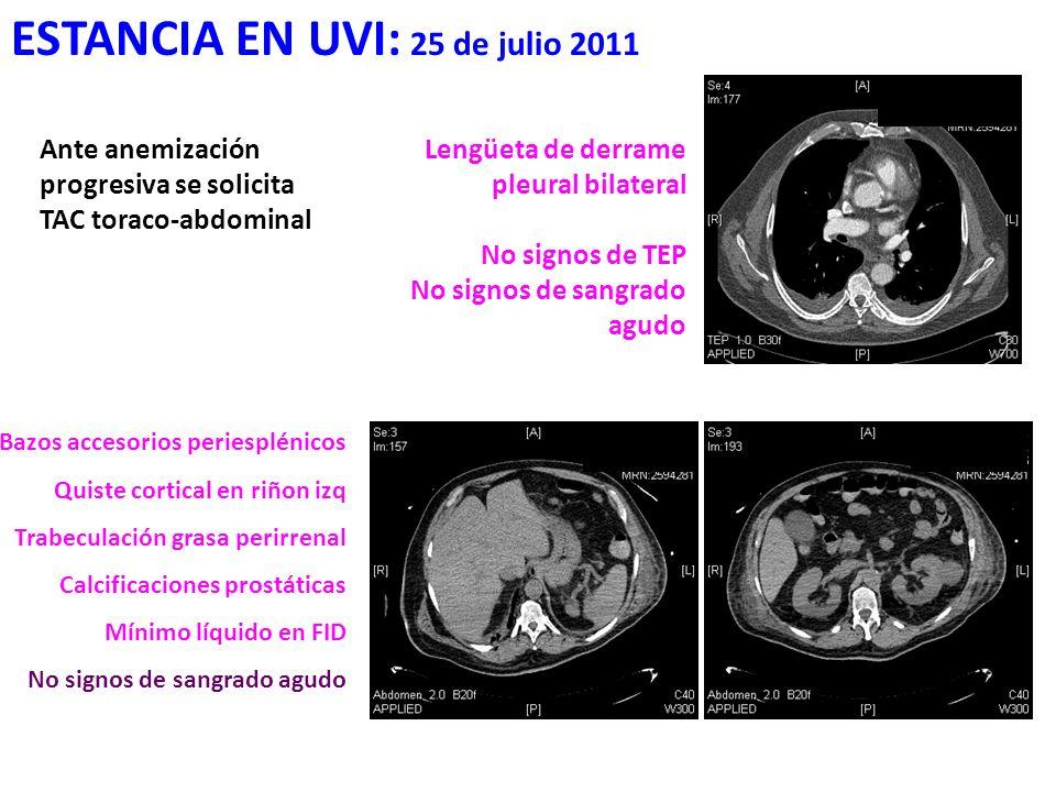 ESTANCIA EN UVI: 25 de julio 2011 Ante anemización progresiva se solicita TAC toraco-abdominal Lengüeta de derrame pleural bilateral No signos de TEP