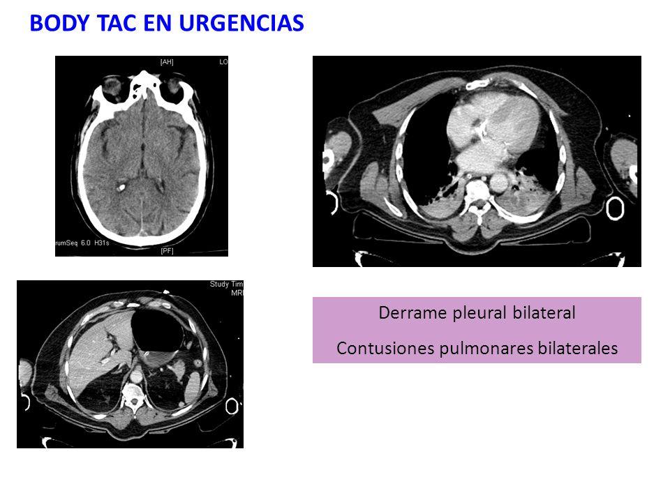BODY TAC EN URGENCIAS Derrame pleural bilateral Contusiones pulmonares bilaterales
