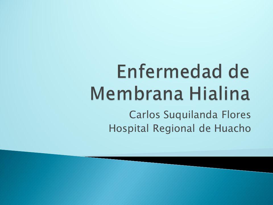Carlos Suquilanda Flores Hospital Regional de Huacho
