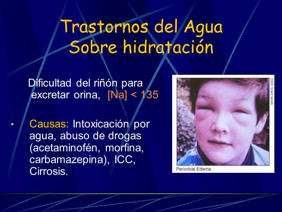 Trastornos del Agua Sobre hidratación Dificultad del riñón para excretar orina, [Na] < 135 Causas: Intoxicación por agua, abuso de drogas (acetaminofé