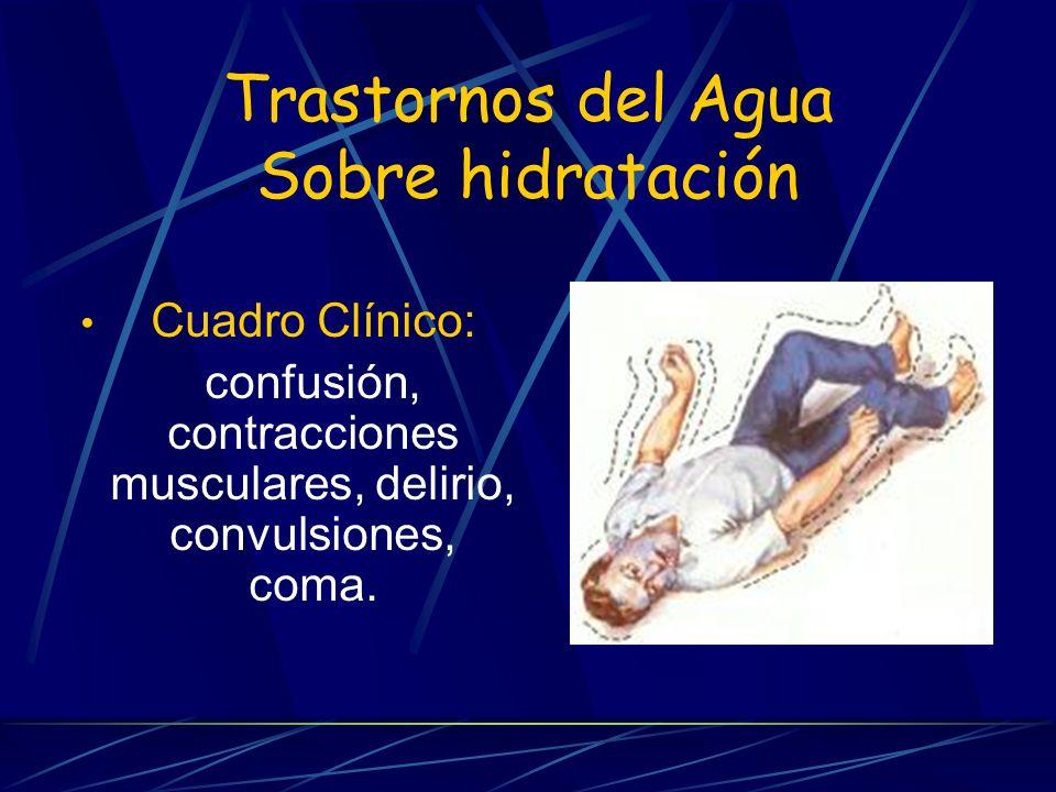 Trastornos del Agua Sobre hidratación Cuadro Clínico: confusión, contracciones musculares, delirio, convulsiones, coma.