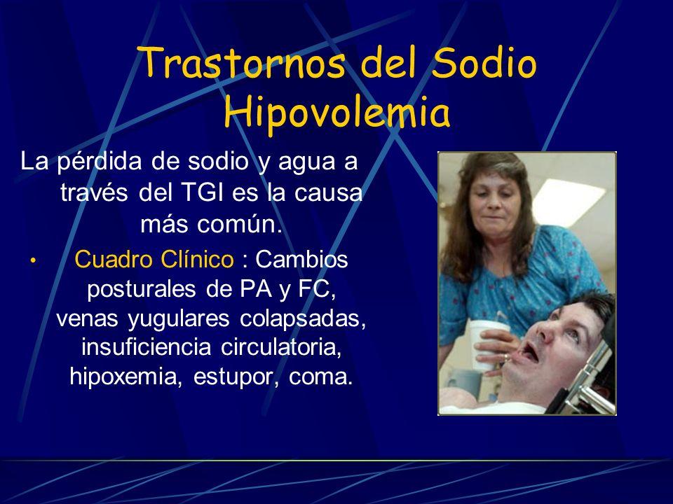 Trastornos del Sodio Hipovolemia La pérdida de sodio y agua a través del TGI es la causa más común. Cuadro Clínico : Cambios posturales de PA y FC, ve