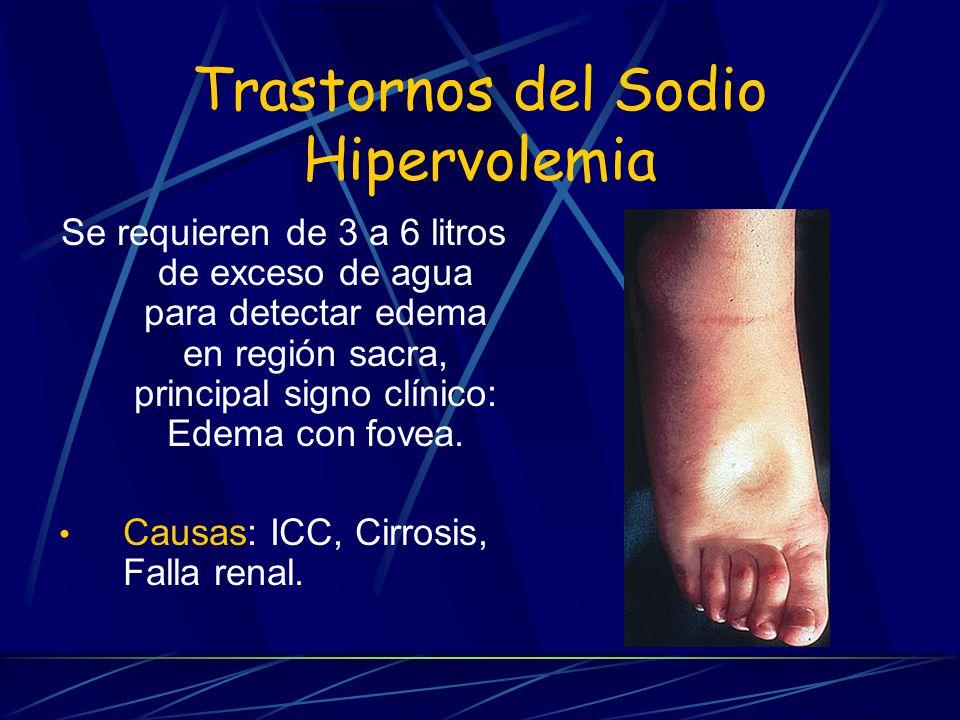 Trastornos del Sodio Hipervolemia Se requieren de 3 a 6 litros de exceso de agua para detectar edema en región sacra, principal signo clínico: Edema c