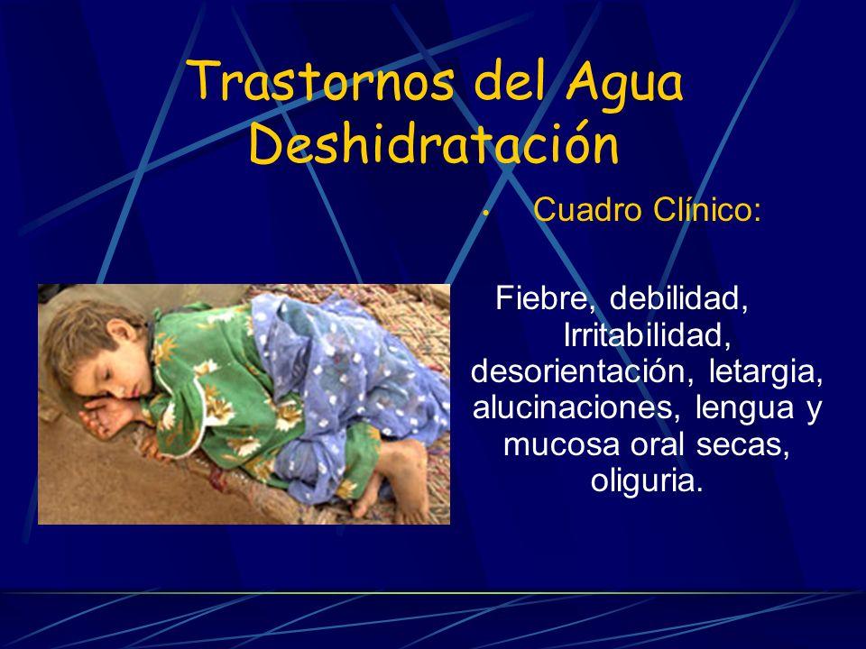 Trastornos del Agua Deshidratación Cuadro Clínico: Fiebre, debilidad, Irritabilidad, desorientación, letargia, alucinaciones, lengua y mucosa oral sec