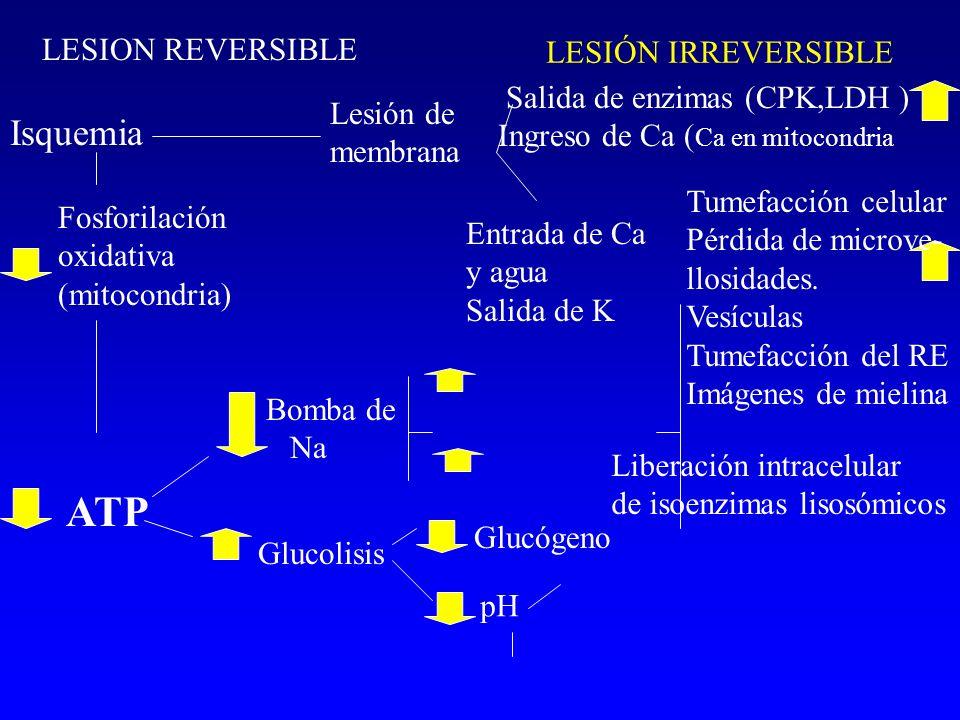 LESIÓN IRREVERSIBLE Isquemia Lesión de membrana Salida de enzimas (CPK,LDH ) Ingreso de Ca ( Ca en mitocondria LESION REVERSIBLE Fosforilación oxidati