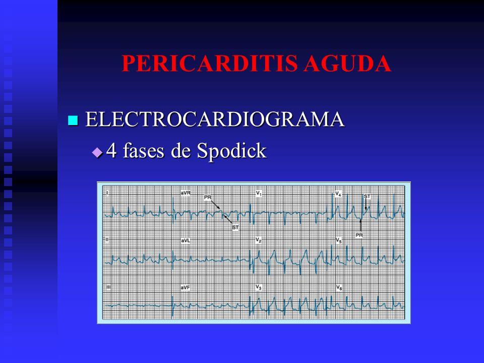 PERICARDITIS AGUDA ELECTROCARDIOGRAMA ELECTROCARDIOGRAMA 4 fases de Spodick 4 fases de Spodick
