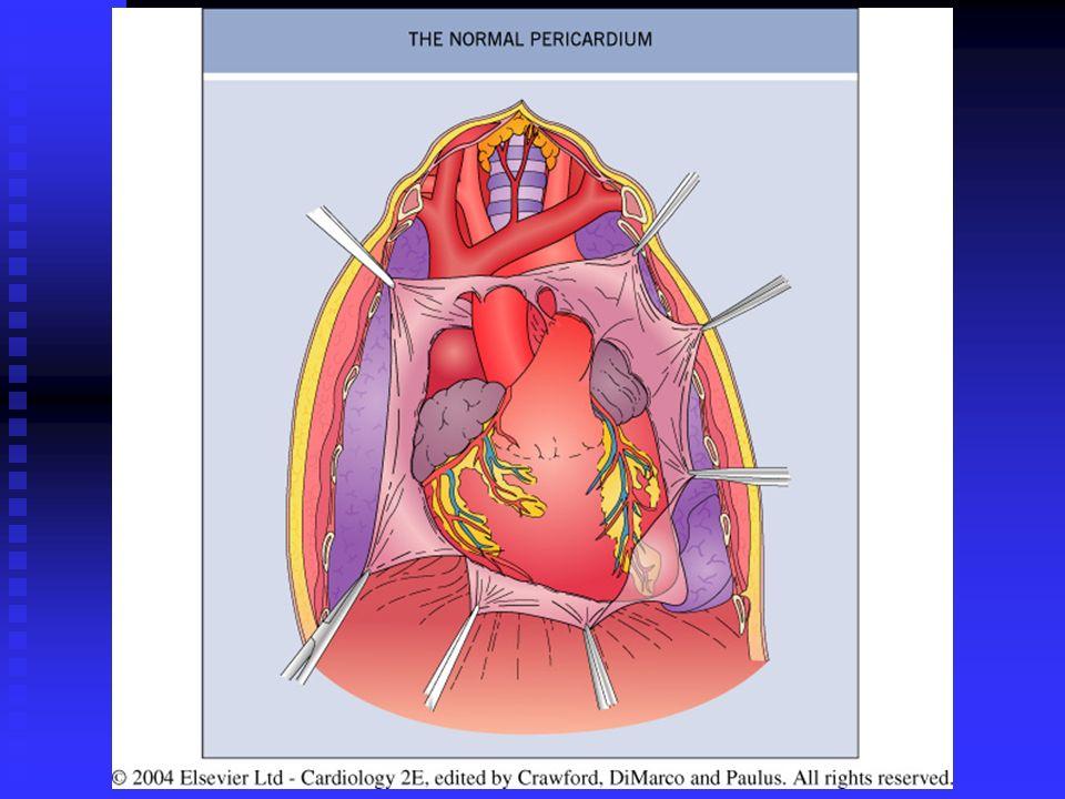 DIAGNOSTICO DIFERENCIAL ENTRE PERICARDITIS Y DOLOR ISQUEMICO ACUTE PERICARDITISISQUEMIA AGUDA (IAM) ENZIMAS CARDÍACASNormal o elevadasElevadas (infarto) FROTE PERICARDICOPresente en la mayoría de los casos Pericarditis epistenocárdica S 3 AusentePuede estar presente S4S4 AusenteCasi siempre presente S 1 IntactoDuplicado CONGESTION PULMONARAusentePodría estar presente SOPLOSAusente salvo que sea previoCIV, o IM