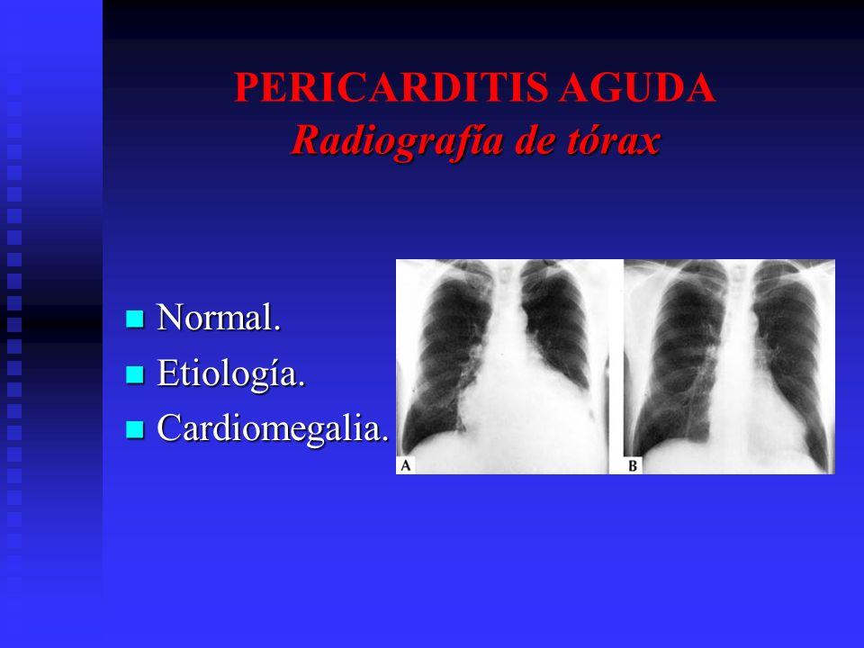 Radiografía de tórax PERICARDITIS AGUDA Radiografía de tórax Normal. Normal. Etiología. Etiología. Cardiomegalia. Cardiomegalia.